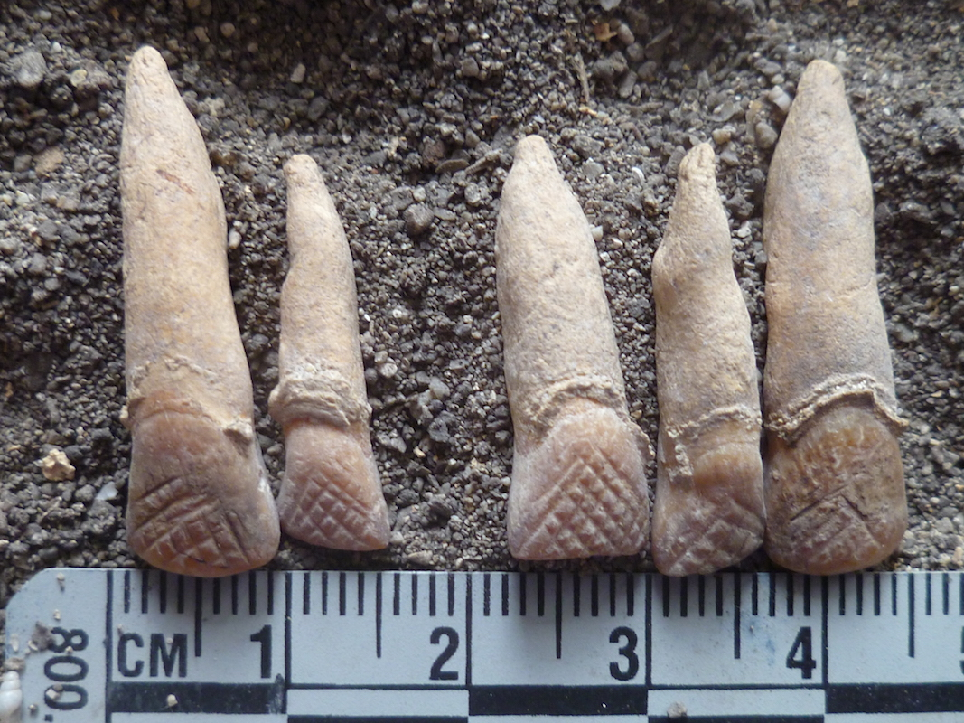 Ancient Chamorro teeth